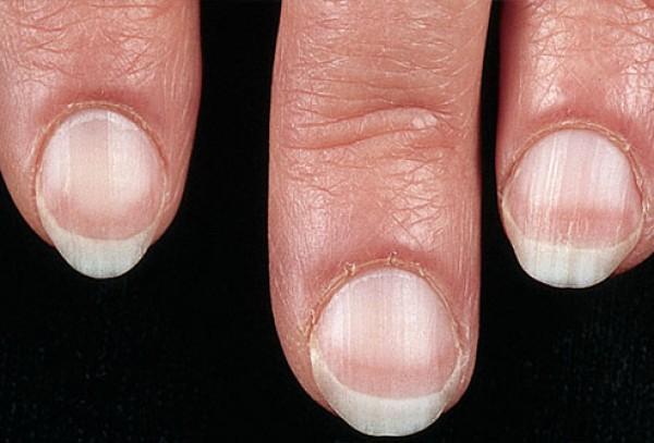 6 необычных признаков болезней сердца, которые видны на ваших ногтях, глазах и ушах :: инфониак