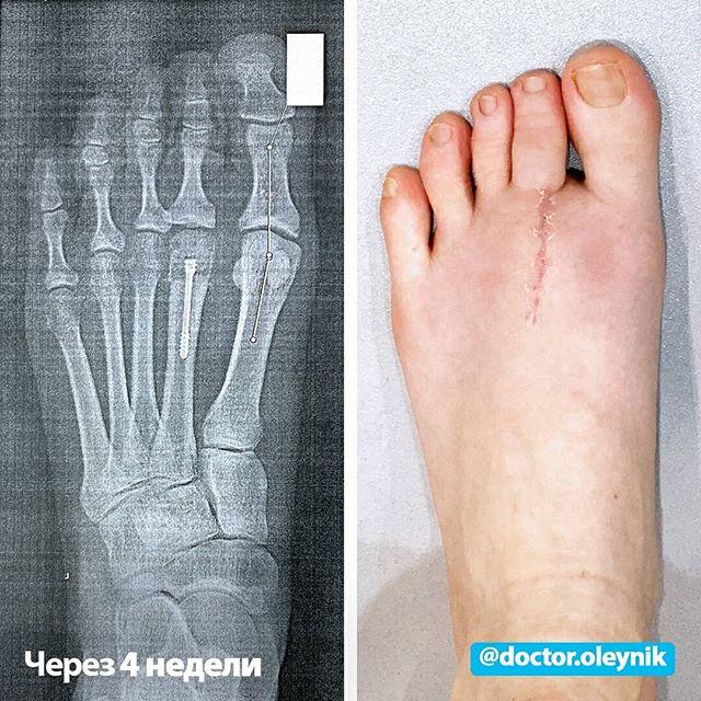 Остеохондропатия ладьевидной кости стопы диагностика и лечение