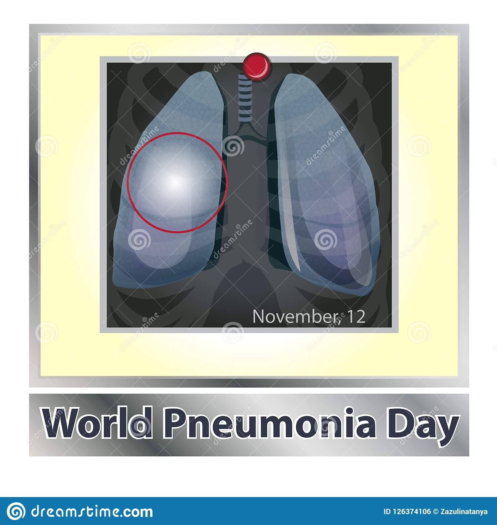 Может ли пневмония перерастать в туберкулез