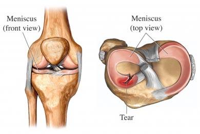 Лечение повреждения внутреннего мениска коленного сустава