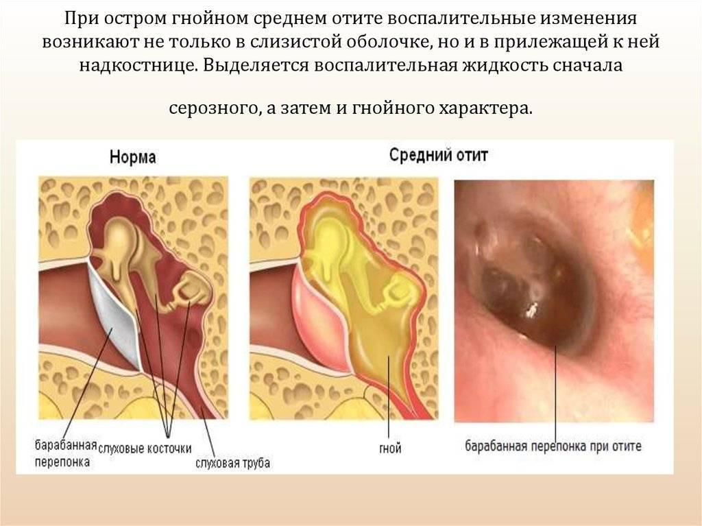 Отит— симптомы, причины, виды, лечение и профилактика отита