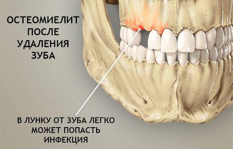 Как проявляется остеомиелит верхней и нижней челюсти – диагностика, лечение и прогноз