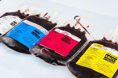 Гемокомпонентная терапия при заболеваниях системы крови