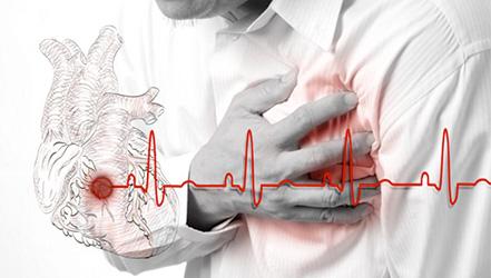 Стенокардия сердца: симптомы, лечение народными средствами