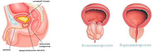 Урологический сбор во время беременности