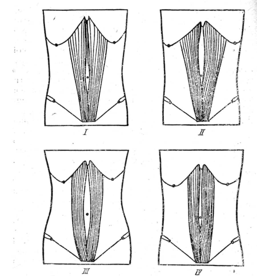 Домашние, косметологические и хирургические способы убрать живот после кесарева