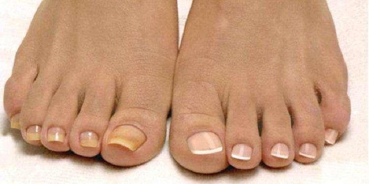 Проблемы и болезни ногтей на ногах с фото и описанием лечения