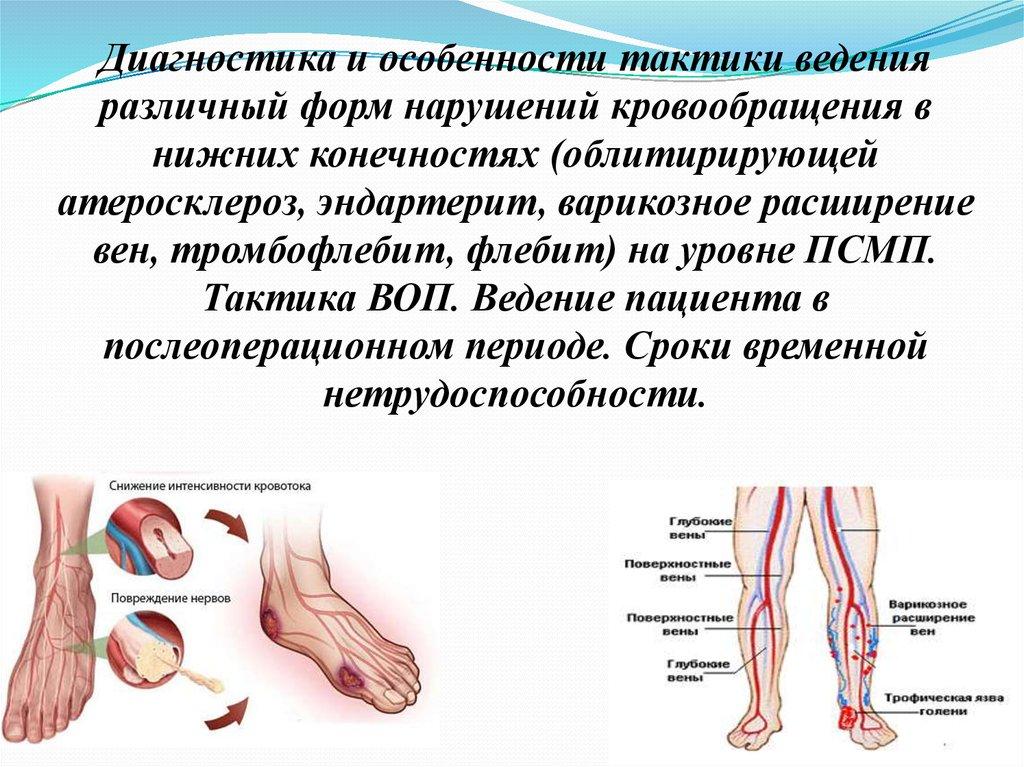 Облитерирующий эндартериит сосудов нижних конечностей: признаки и лечение