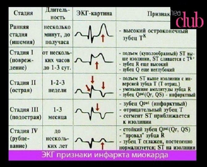 Первые признаки инфаркта у мужчин