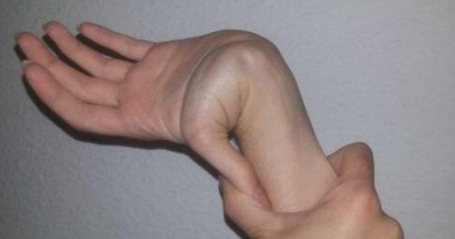 Дисплазия соединительной ткани у ребенка
