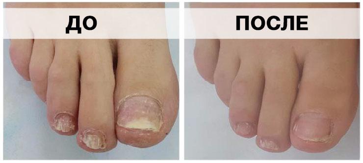 Топ-4 лучших таблеток от грибка на ногах