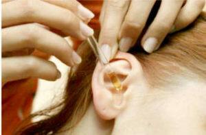 Ушная пробка признаки. бывает ли боль в ухе при серной пробке? удаление ушной пробки в домашних условиях.