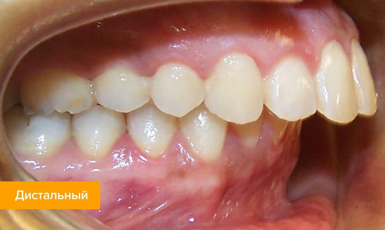 Неправильный прикус зубов: какие могут быть последствия?