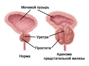Современные виды операций по удалению аденомы простаты