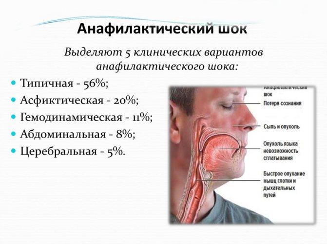 Анафилактический шок — патогенез и методы лечения