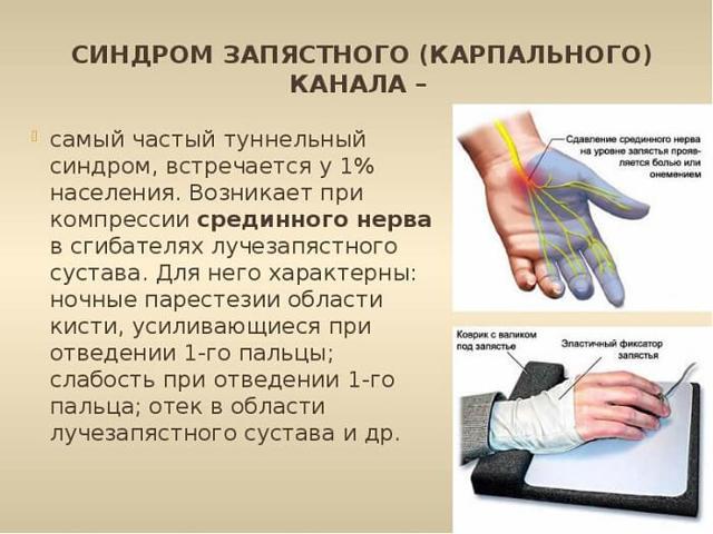 Почему немеют пальцы на правой руке?