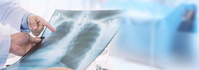Туберкулез легких у женщин на ранней стадии: первые признаки и симптомы