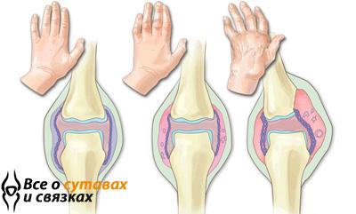 Чем питаться при артрите голеностопного сустава