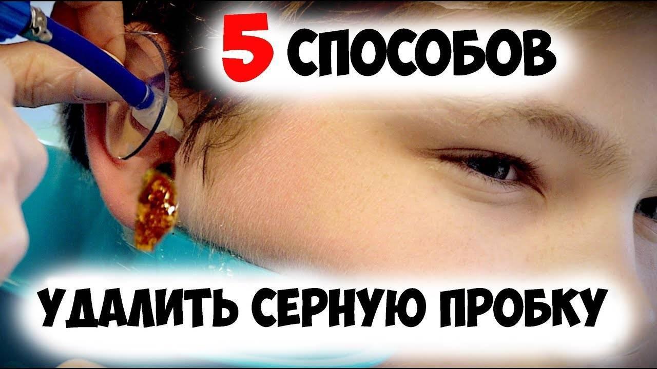 Как убрать серную пробку в ухе у ребенка?
