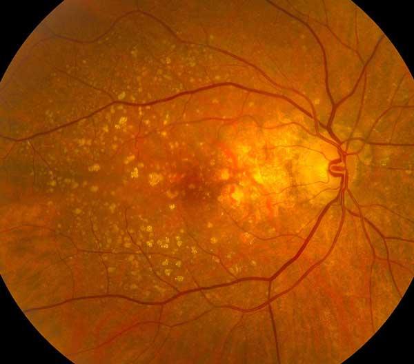 Формы макулодистрофии сетчатки глаза и их лечение