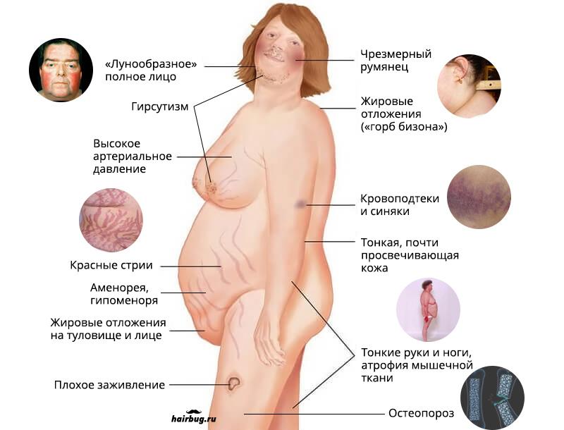 Гирсутизм у женщин – что это такое? идиопатический гирсутизм – причины, лечение?