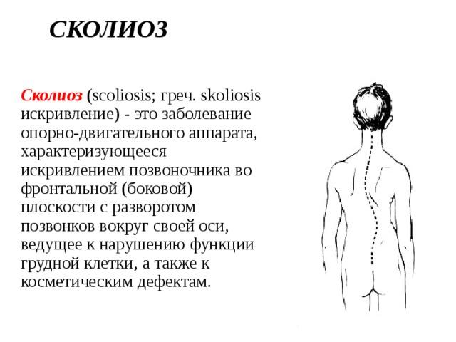 Лфк при сколиозе 1 и 2 степени: комплекс упражнений. рекомендации врача лфк