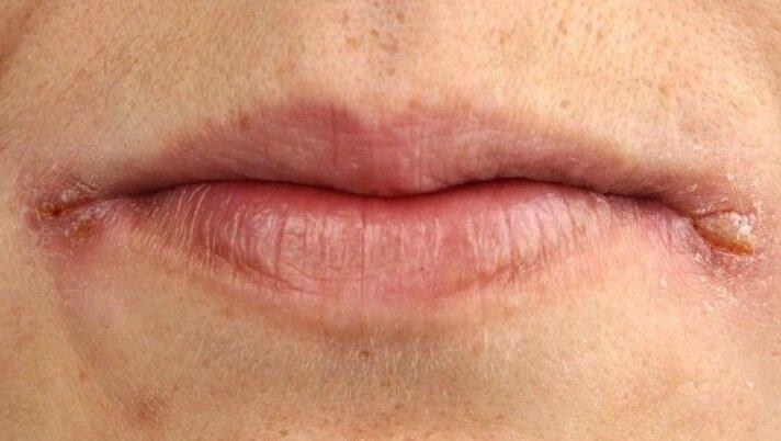 11 причин трещин в уголках рта и их лечение