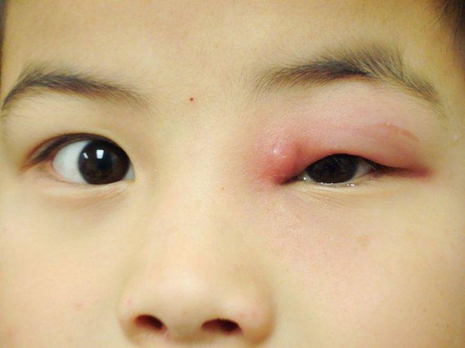 Дакриоцистит (воспаление слезного мешка): что это такое и как лечить