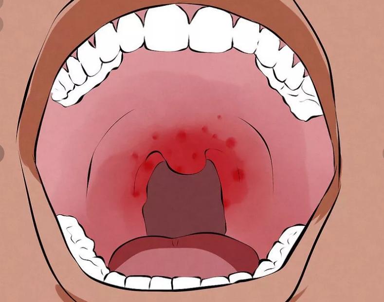 Зеленый налет на языке, признак различных заболеваний, лечение