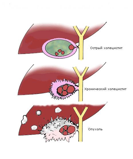 Холецистопанкреатит хронический: методы лечения — симптомы