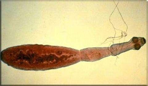 Лечение и профилактика гименолепидоза