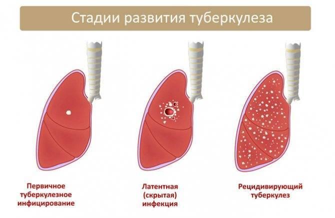Туберкулез легких, что такое, признаки, симптомы, лечение