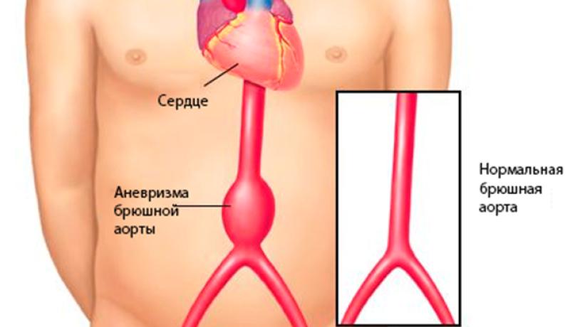 Как спасают жизнь при разрыве аневризмы брюшной аорты?