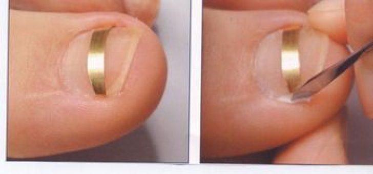 Вросший ноготь. причины, симптомы, операция удаления ногтя и реабилитация. :: polismed.com