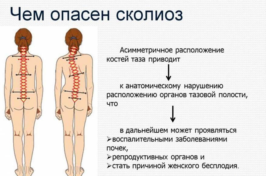 Искривление позвоночника и нарушение осанки у детей (причины и фото)