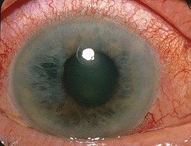 Норма глазного давления при глаукоме: как снизить высокие показатели