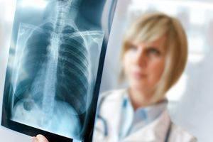 Рентген легких лучше или флюорография – как определить пневмонию