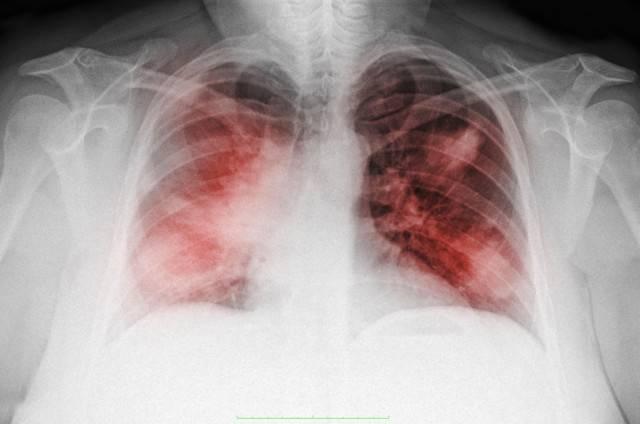 Микоз легких – симптомы и лечение грибковой пневмонии