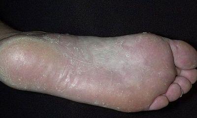 Грибок кожи ног: средства для лечения заболевания