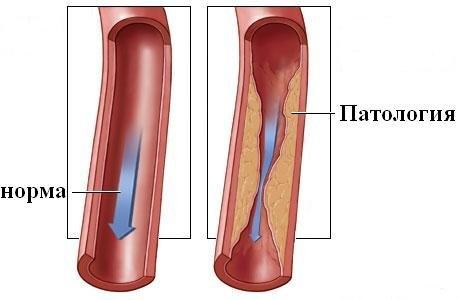 Причины, симптомы и профилактика окклюзи артерий ног