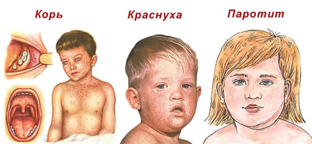 Корь у взрослого человека: спасет ли прививка?