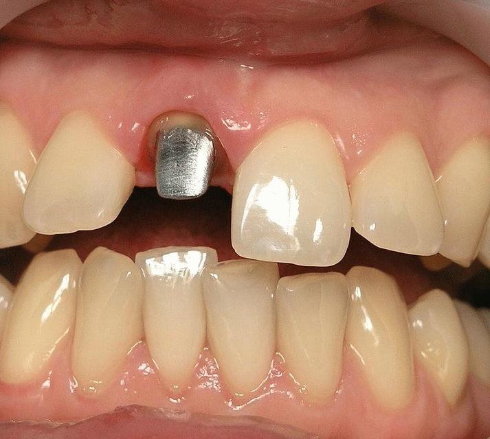 Культевая вкладка — восстановление сильно разрушенных зубов