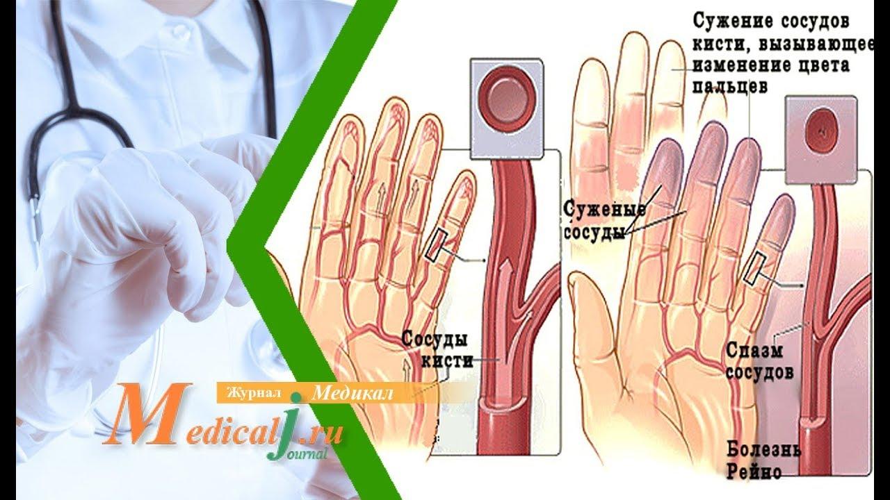 Синдром рейно симптомы лечение