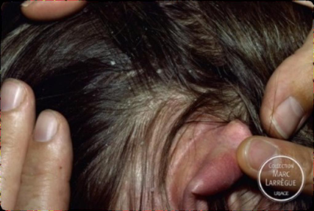 Себорейный дерматит на теле и голове