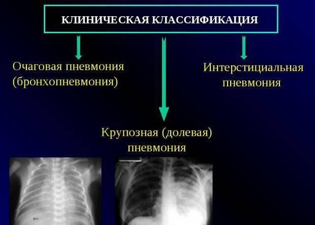 Очаговая пневмония: симптомы и лечение