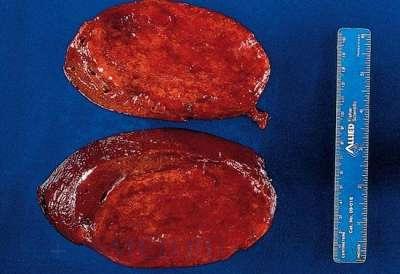 13 типичных и нетипичных симптомов гемангиомы печени, а также 6 методов хирургического лечения опухоли