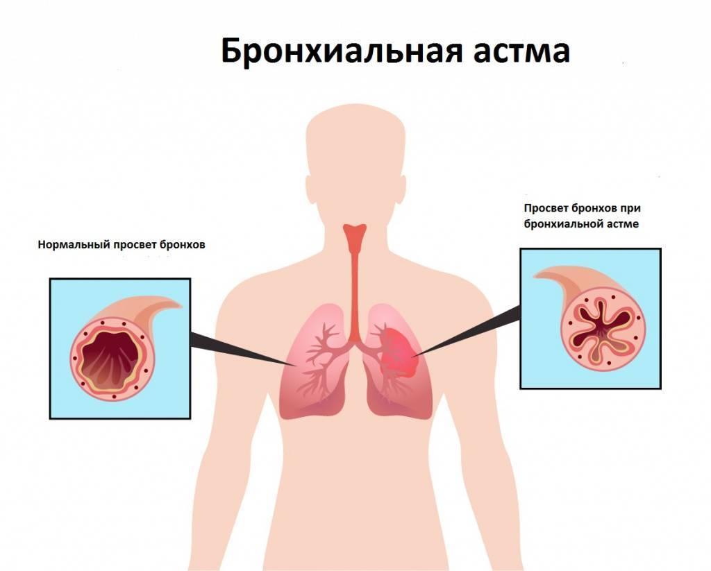 Боль в грудине слева причины и кашель сухой
