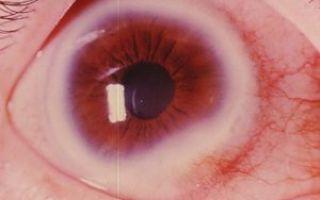 Корнерегель – инструкция по применению для глаз, цена, обзор и отзывы