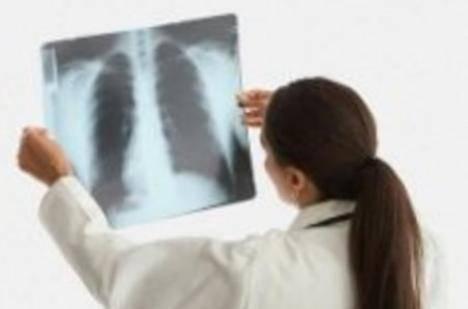 Двухстороннее воспаление легких – симптомы, лечение, последствия, уровень смертности