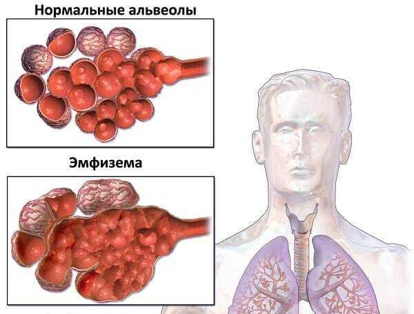 Признаки и методы лечения пылевого бронхита